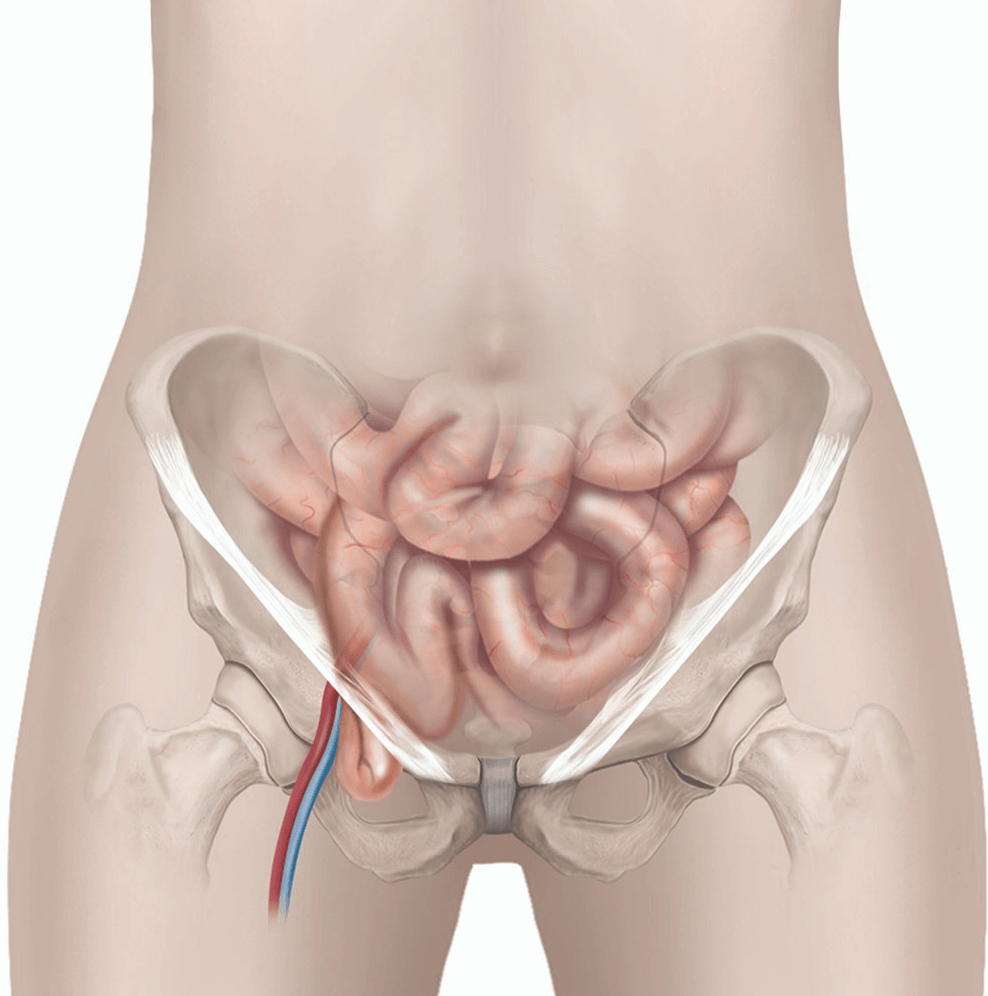 Femoral hernia treatment in Pune