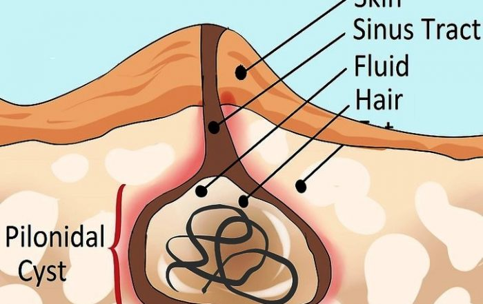 Pilonidal Sinus Specialist Doctor in Wanowrie, Fatima Nagar, Kondhwa, Undri, Manjri & Hadpsar