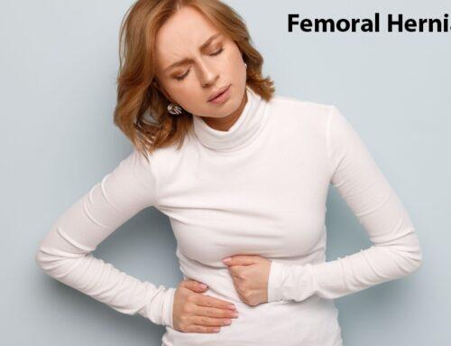 10 Risk Factors of Femoral Hernia