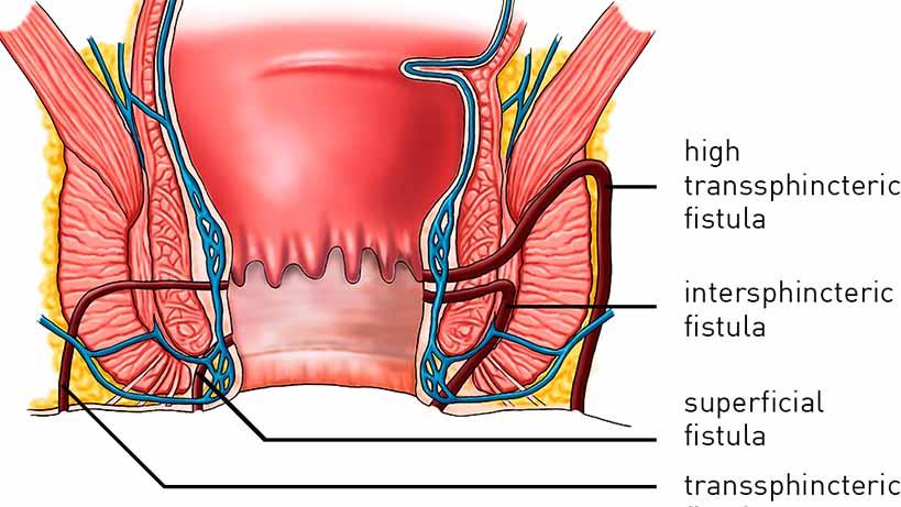 anal fistula specialist in pune