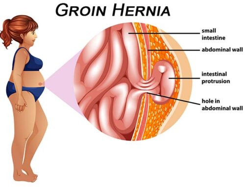 Groin Hernias in Women – A Review of the Literature