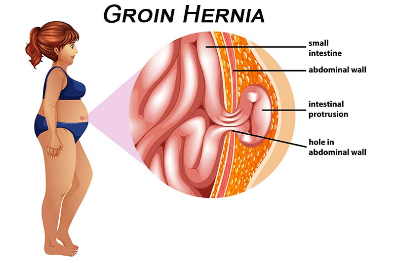 groin hernia surgeon in pune