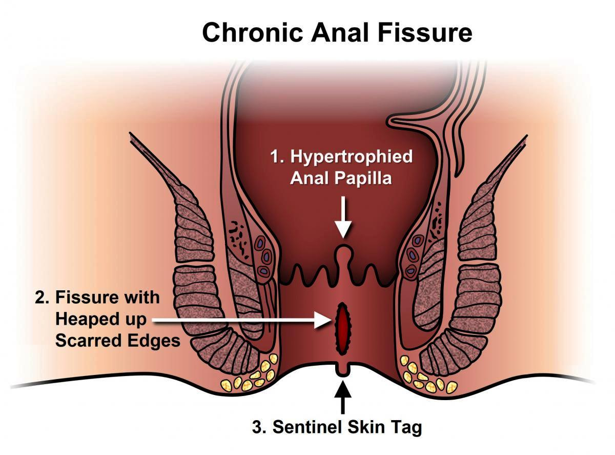 Anal Fissure Surgeon in Pune