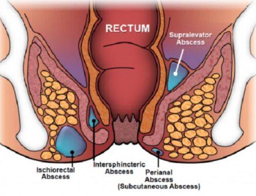 Risk Factors for Obstetric Fistula