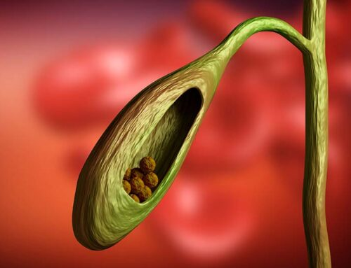 Gallbladder Pain: Relief, Causes, and Diet