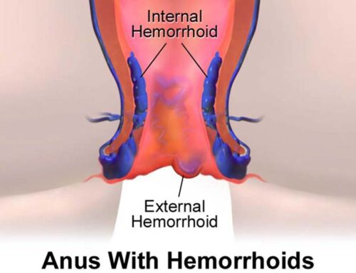 Internal and External Hemorrhoids: Symptoms, Treatment, Pictures & Causes