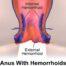 hemorrhoids laser surgery cost in hadapsar