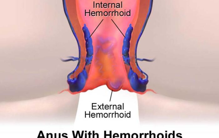 hemorrhoids laser surgery cost in hadapsar