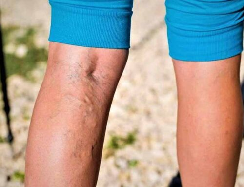 Hemorrhoids and Varicose Veins: A Review of Treatment Options